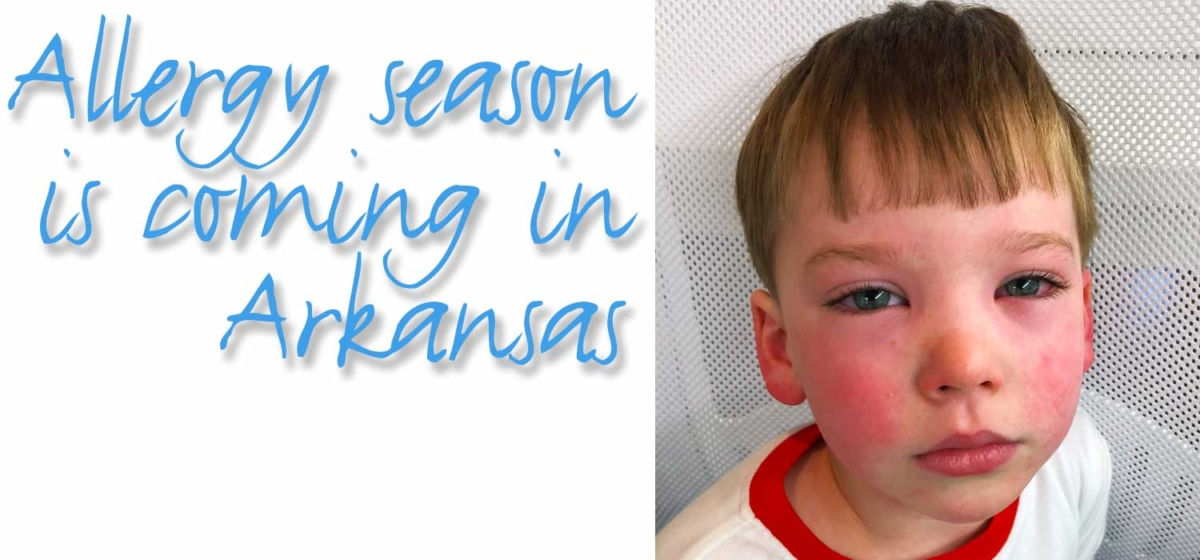 "Boy's face all red from allergies, text ""allergy season is coming in Arkansas"""